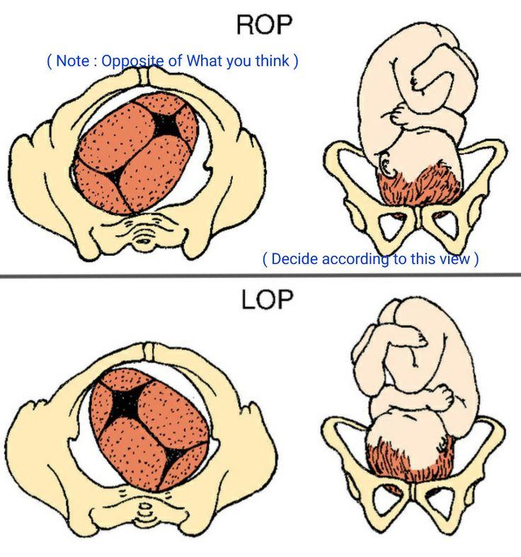 a headache in the pelvis ebook
